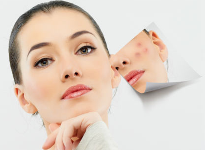 Acne Skin Treatment  - 90 min