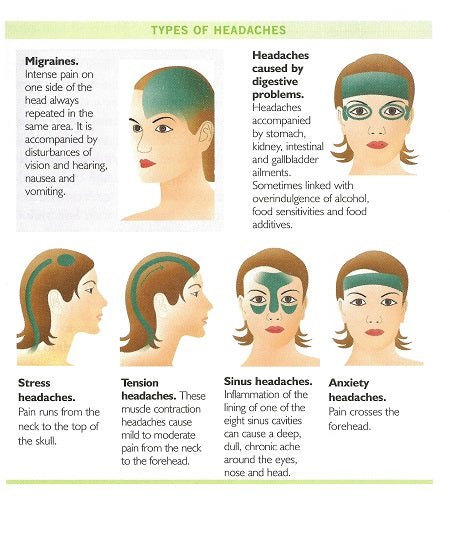 Infographic showing the difficult types and causes of headaches