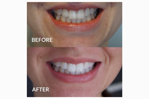 Teeth whitening review - direct from a beauty expert
