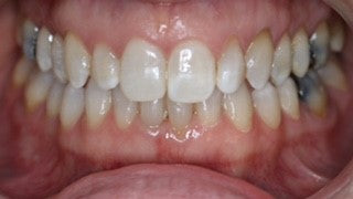 A great Invisalign case