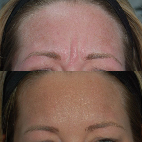 A recent facial aesthetics case study