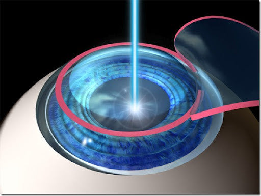 CONTACT LENSES AFTER LASIK SURGERY