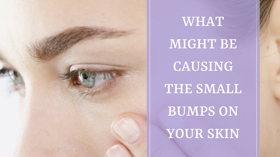 what might be causing the small bumps on your skin