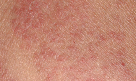 Eczema, Psoriasis and Rosacea, And The Common Link That Can
