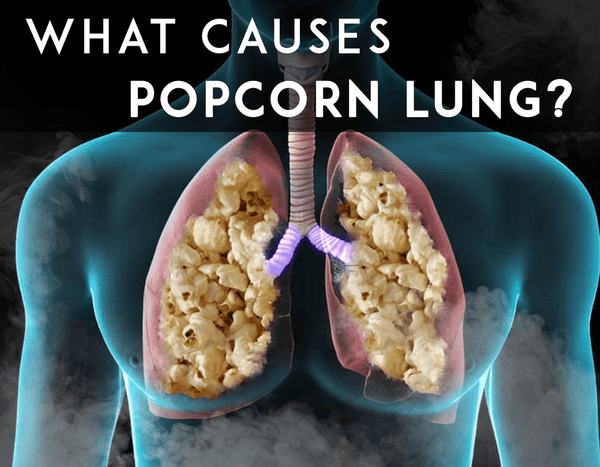 What Causes Popcorn Lung?