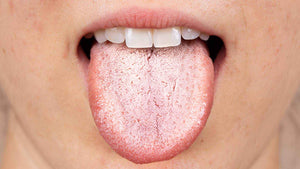 vapers tongue what is it and how is it caused?