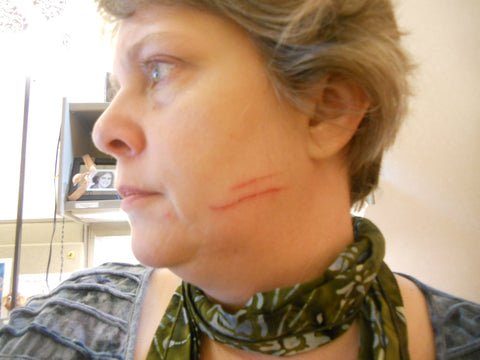 Image showing woman with infected cat scratch on face
