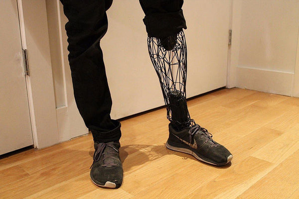Technology Revolution | 3D Printed Titanium Prosthetics