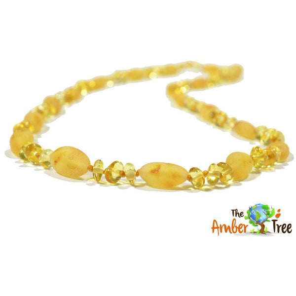 Creme Brulee Baltic Amber Necklace