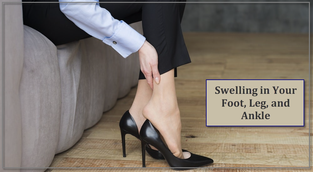 Swelling in Your Foot, Leg, and Ankle