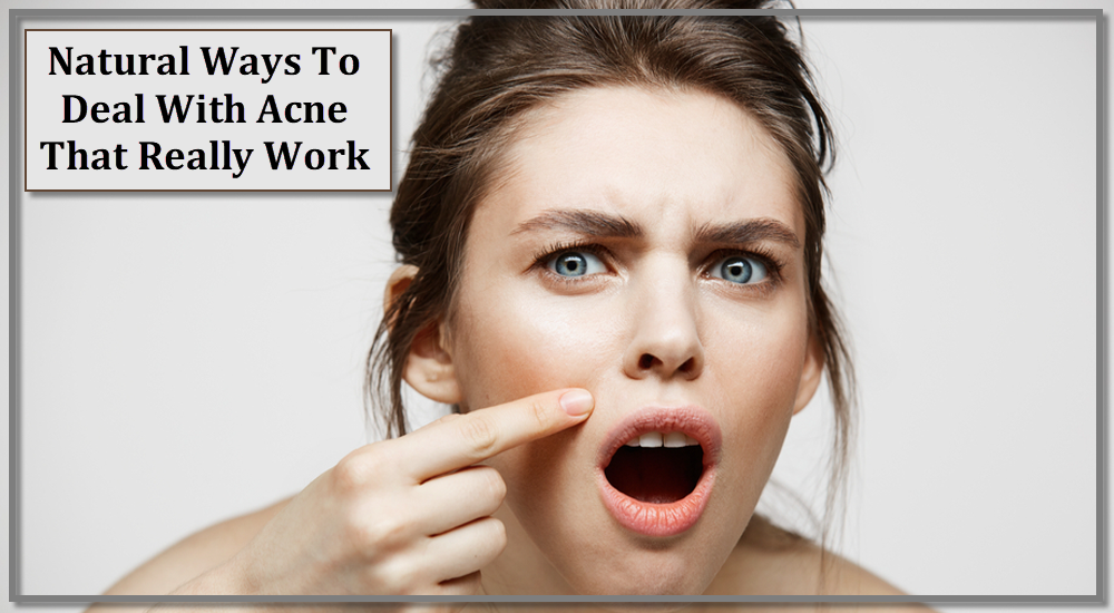 Natural Ways To Deal With Acne That Really Work