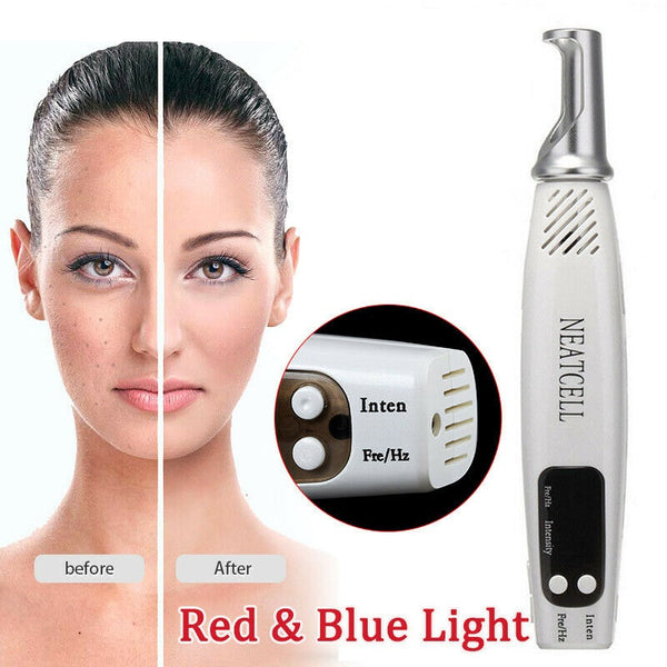 Laser Pen Acne Removal