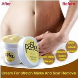 POWERFUL SKIN STRETCH MARK REMOVER  CREAM