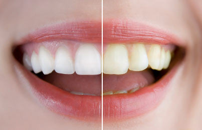3 Habits That Are Staining Your Teeth