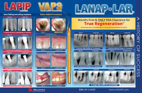 Prints - LANAP Success Brochure - Qty 25