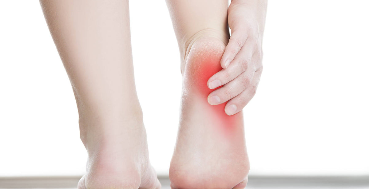 5 Signs your plantar fasciitis is getting worse | Plantar