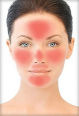 Skincare Products to Relieve Rosacea