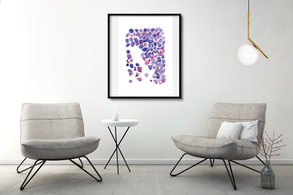 Acute Myeloid Leukemia Art, Hematopathology Print, Oncohematology Print