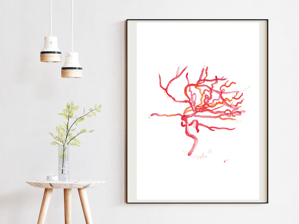 brain artery art