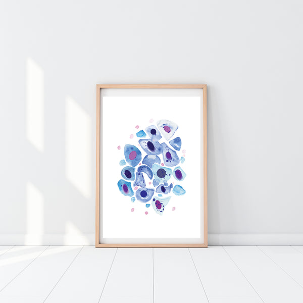 Bronchial Wash Pathology, Pulmonology Art Print