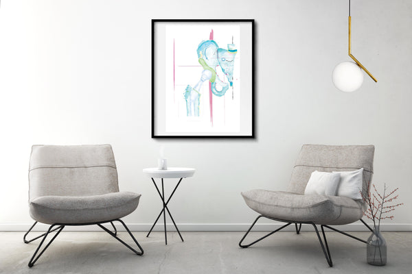 Hip Replacement Orthopedic Anatomy Art