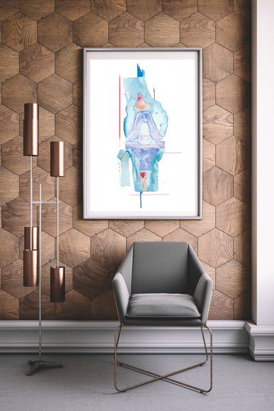 Knee Replacement Surgery Art Print, Orthopedic Surgery Wall Art