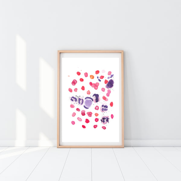 lupus pathology art print