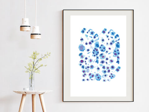 Skin Cell Art Print, Melanoma Art, Dermatology Office Wall Decor, Pathology Art