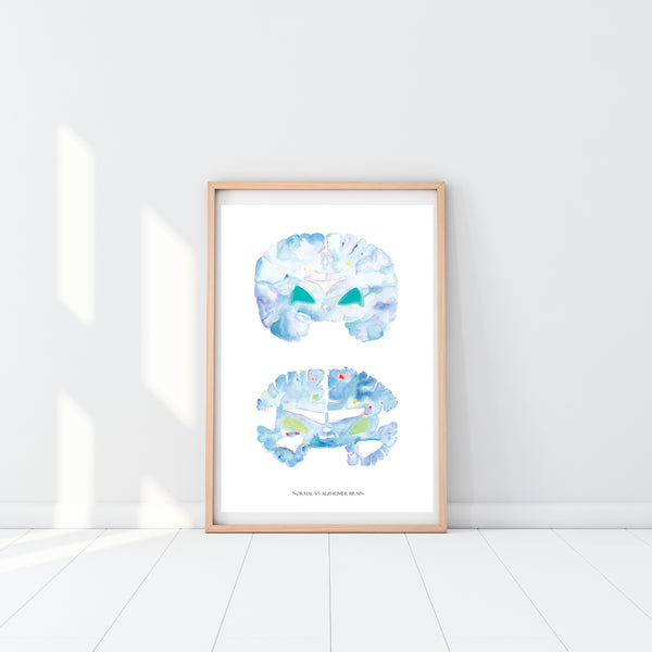 Brain Anatomy Alzheimer Disease, Neurology Art Print