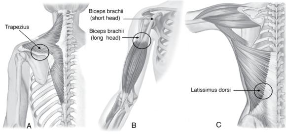 Attachments of muscles onto bones (A) directly, or indirectly through a (B) tendon or (C) aponeurosis.