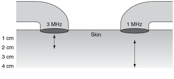 Figure 12.7 A great depth of heating is achieved with 1 MHz. The specific depth of heating is device dependent, and the values provided represent a range rather than specific limits of thermal responses.