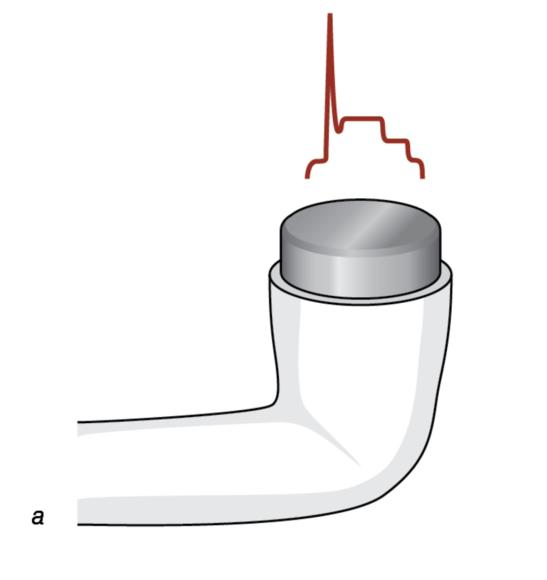 Figure 12.4 The area of peak intensity, small and larger, may affect the performance of ultrasound devices.