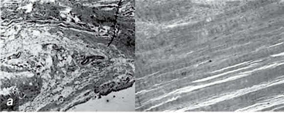 Figure 16.8 Pathologic changes in tendinopathy. Collagen organization: H&E. Increased proteoglycan.