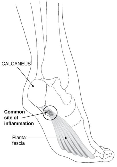 Figure 6.41 Common site of pain with plantar fasciitis (left foot, posteromedial view).
