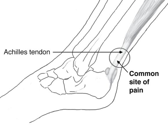Figure 6.42 Common site of pain and thickening with Achilles tendinopathy (left foot, lateral view).