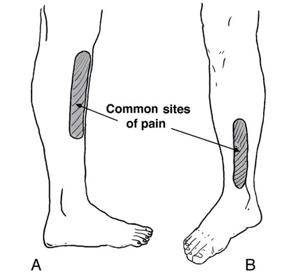 Figure 6.44 Pain associated with shin splints thought to reflect involvement of the (A) tibialis anterior and (B) tibialis posterior, flexor hallucis longus, or soleus.