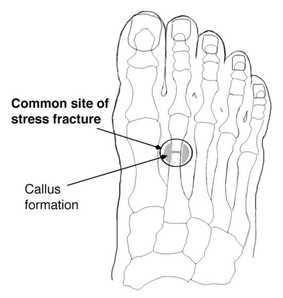 Figure 6.45 Common site of stress fracture in dancers (right foot, superior view).
