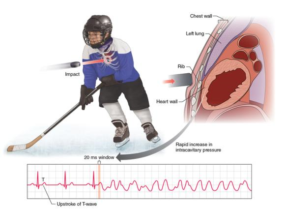 Figure 8.6 The type of injury associated with commotio cordis is a blow to the chest wall that interrupts the usual cardiac rhythm.