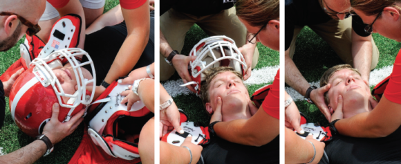 Figure 9.25 Helmet removal with face mask.