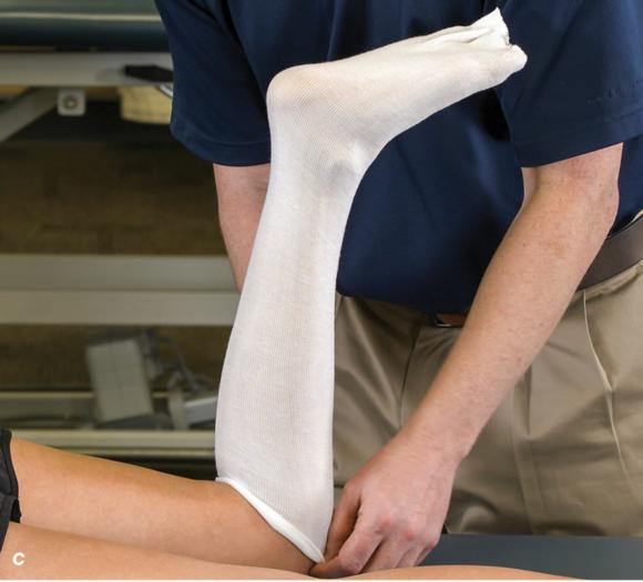 Figure 2.32 Posterior splinting procedure applied to immobilize the foot and ankle. Position the foot and ankle in the functional position, which is 0° of dorsiflexion. Measure 4 inches (10 cm) beyond the base of the popliteal fossa and 4 inches (10 cm) beyond the metatarsal heads to determine the amount of stockinette needed. Apply the stockinette. Beginning at the metatarsal heads, roll the cast padding circumferentially from distal to proximal ending at the base of the popliteal fossa. Measure from the base of the popliteal fossa to the metatarsal heads to determine the length of the splint. Starting at the metatarsal heads, position the posterior splint against the plantar surface of the foot and posterior aspect of the leg. Fold down any excess splint material at the knee. Fold the stockinette and cast padding over the ends of the fiberglass splint. Starting distally, secure the splint in place with an elastic wrap. () Completed posterior splint.