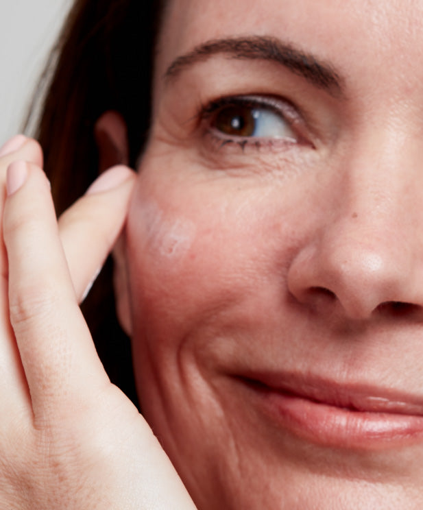 woman with skin redness
