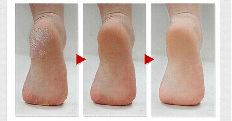 Image result for Foot Callus Remover