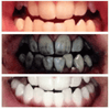 Image of Bamboo Charcoal All-Purpose Toothpaste - Whiter Teeth in 10 minutes!:Hobbies Unleashed