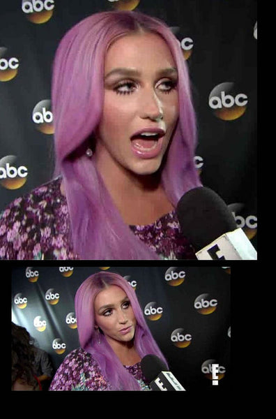 Kesha on E! News