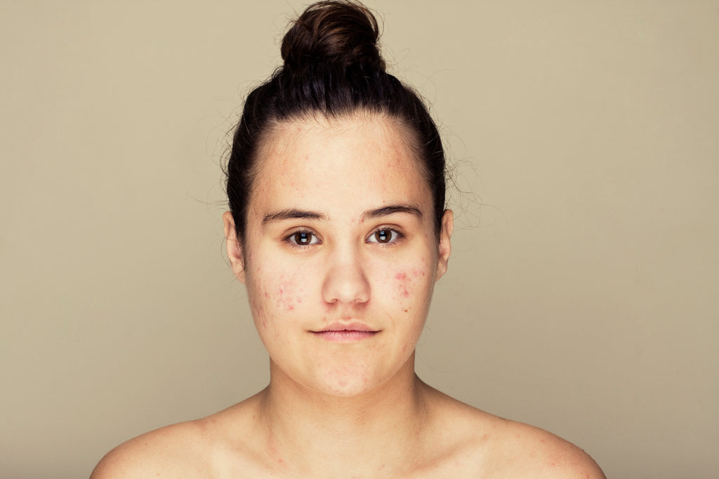 Acne FAQ: Here's what you need to know