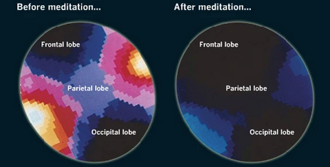 meditation in our brain