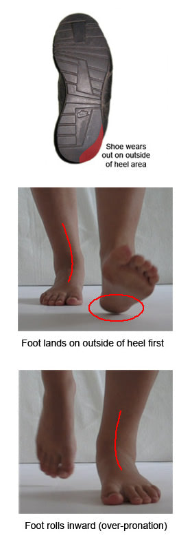 Pronation and Shoe Wear