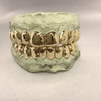 14K Gold Grill Special