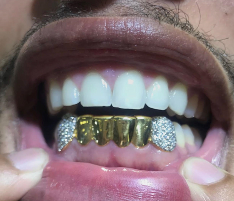 6 Piece Gold with 2 Diamond Fangs