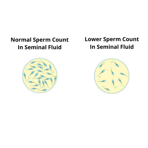 Normal Sperm Count In Seminal Fluid, Lower Sperm Count In Seminal Fluid